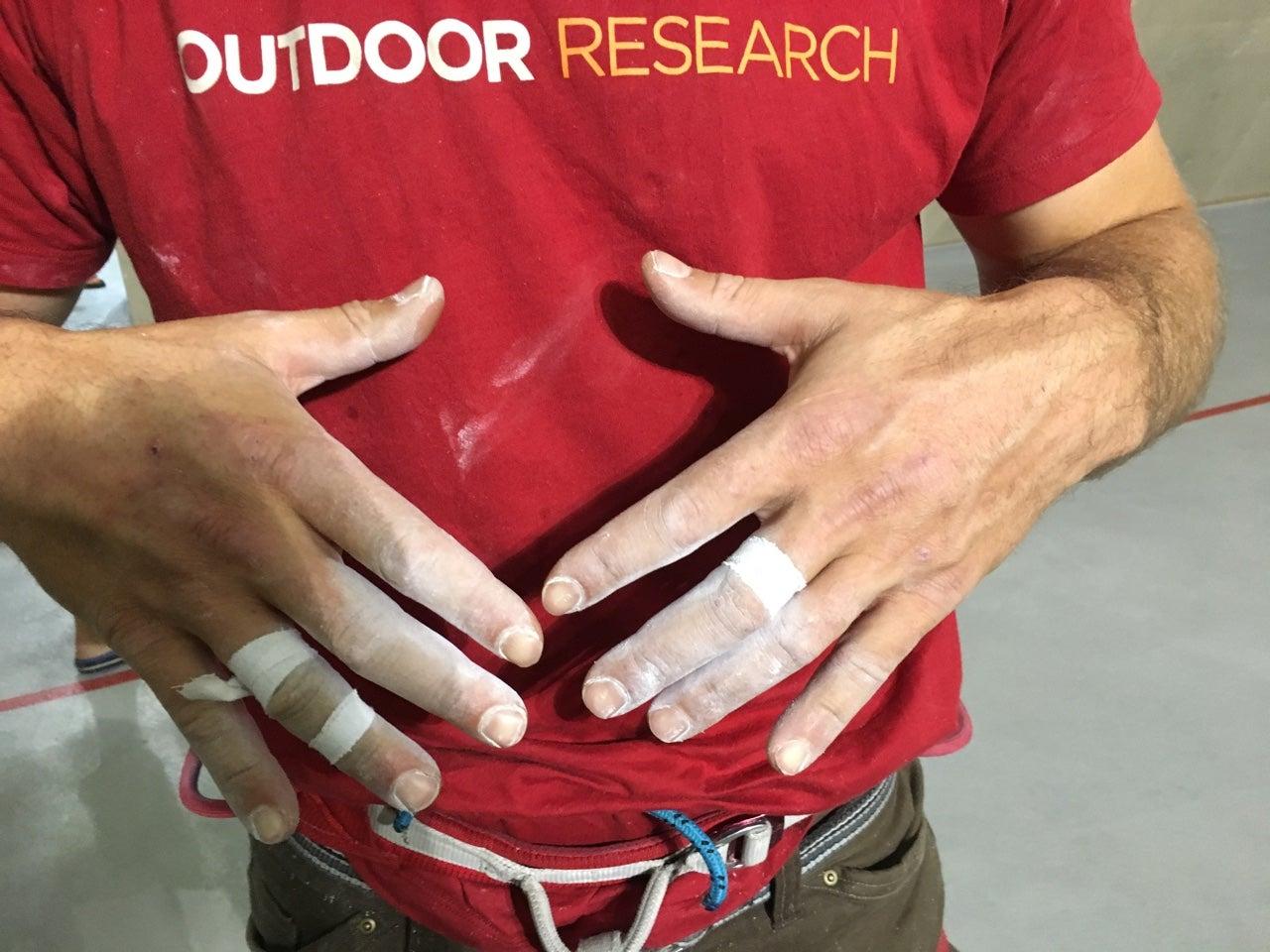 Finger Injury? Don't Sweat